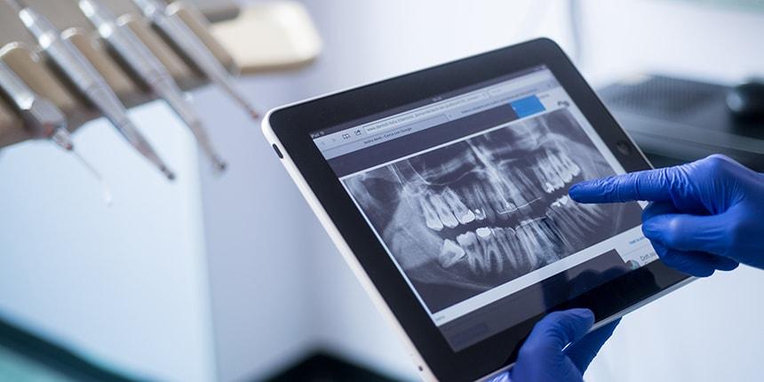 Studio Loro - dentista Biella - carie ai denti
