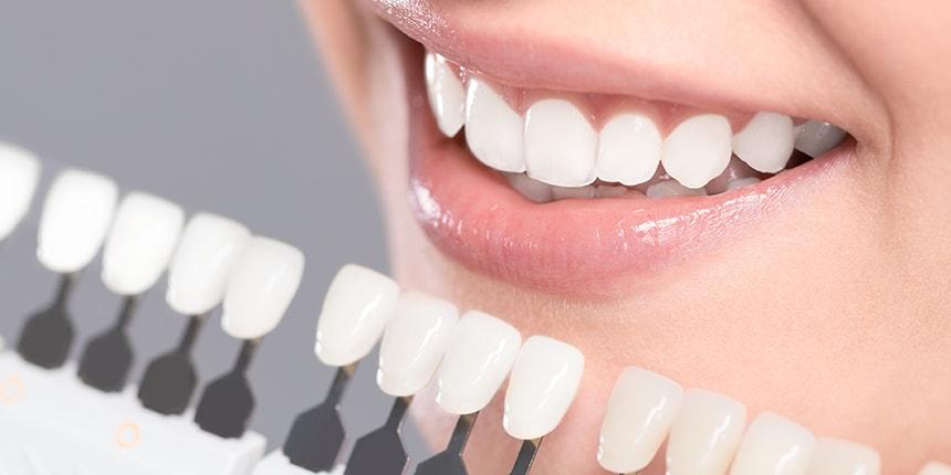 Studio Loro - dentista Biella - sbiancamento dentale