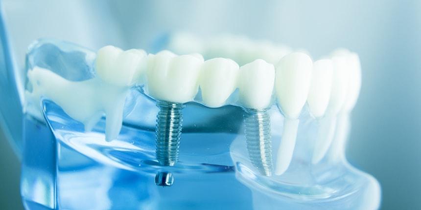 Studio Loro - dentista Biella - impianti
